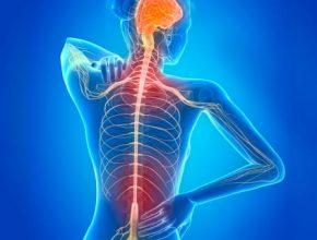 sintomas esclerosis multiple