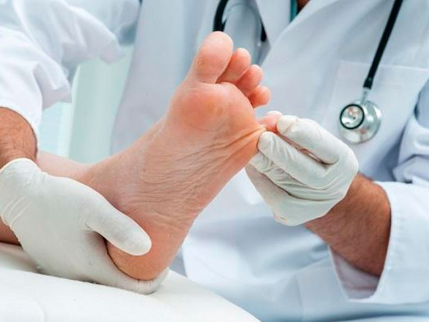 síntomas de hongos en los pies